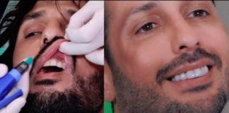 fabrizio-corona-denti